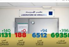 Photo of مستجدات كورونا:انخفاض في الإصابات و تسجيل 94 حالة