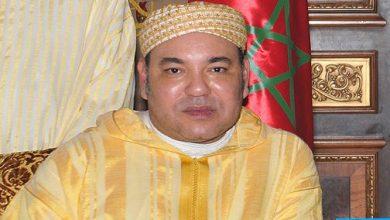 Photo of صاحب الجلالة يجري عملية جراحية كللت بالنجاح