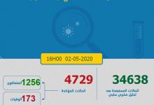 Photo of مستجدات كورونا:160 إصابة و 173 حالة شفاء جدد