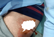 Photo of هائج يعتدي بالسلاح الأبيض على حراس المستشفى الجامعي بفاس
